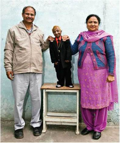 pituitary dwarfism is caused by insufficient gh in childhood
