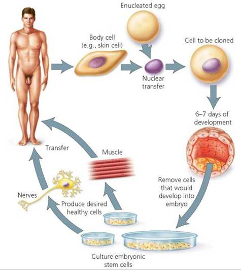 therapeutic cloning Somatic cell nuclear transfer (more commonly called therapeutic cloning) is about saving and improving lives it is fundamentally different from human reproductive.