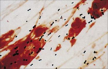 glucophage 500mg tablets