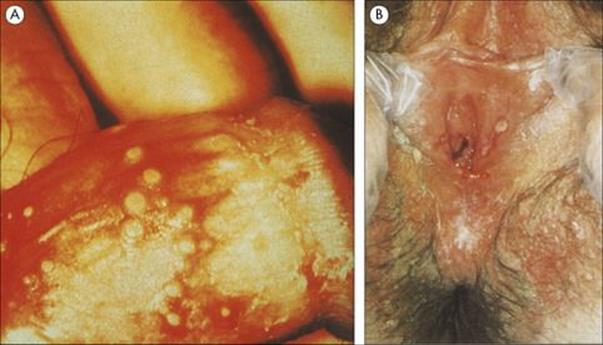 (7) Penile infectious lesions, including herpes genitalis and condyloma acuminata, acute or chronic, not amenable to treatment 2