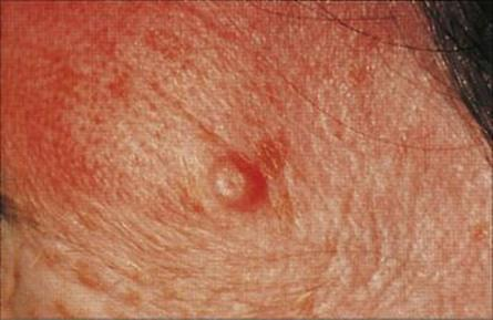 Common Symptoms of Genital Herpes in Men and Women