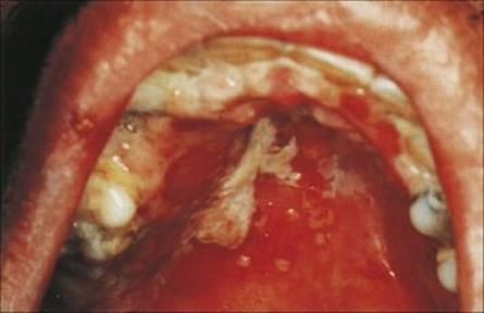 Similarly, HSV-2 infection in theoral area-outside its site of preference-very rarely causes problems 2